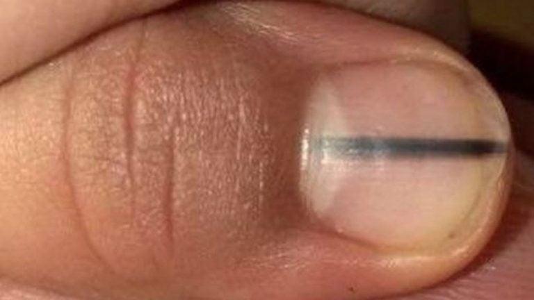 ¿Una línea negra en tus uñas podría ser una señal de cáncer?