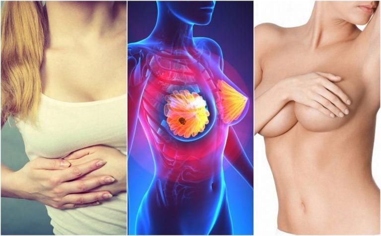 Avances en el tratamiento del cáncer de mama