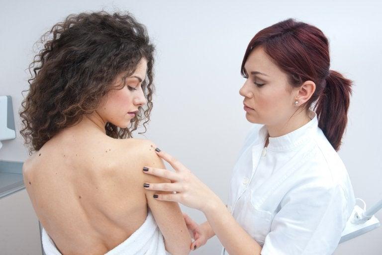 Cuidado: el número de lunares en tus brazos puede alertar de un cáncer de piel