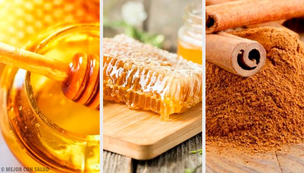 Remedio con canela, propóleo, peladura de limón y miel para subir las defensas