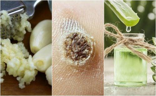 ¿Tienes verrugas en tu piel? Combátelas naturalmente con estos 5 remedios