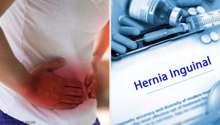 Remedio casero para ayudar a desinflamar las hernias