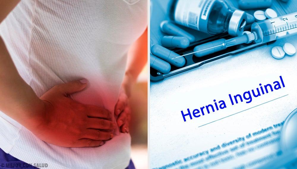 Tratamiento de la hernia inguinal