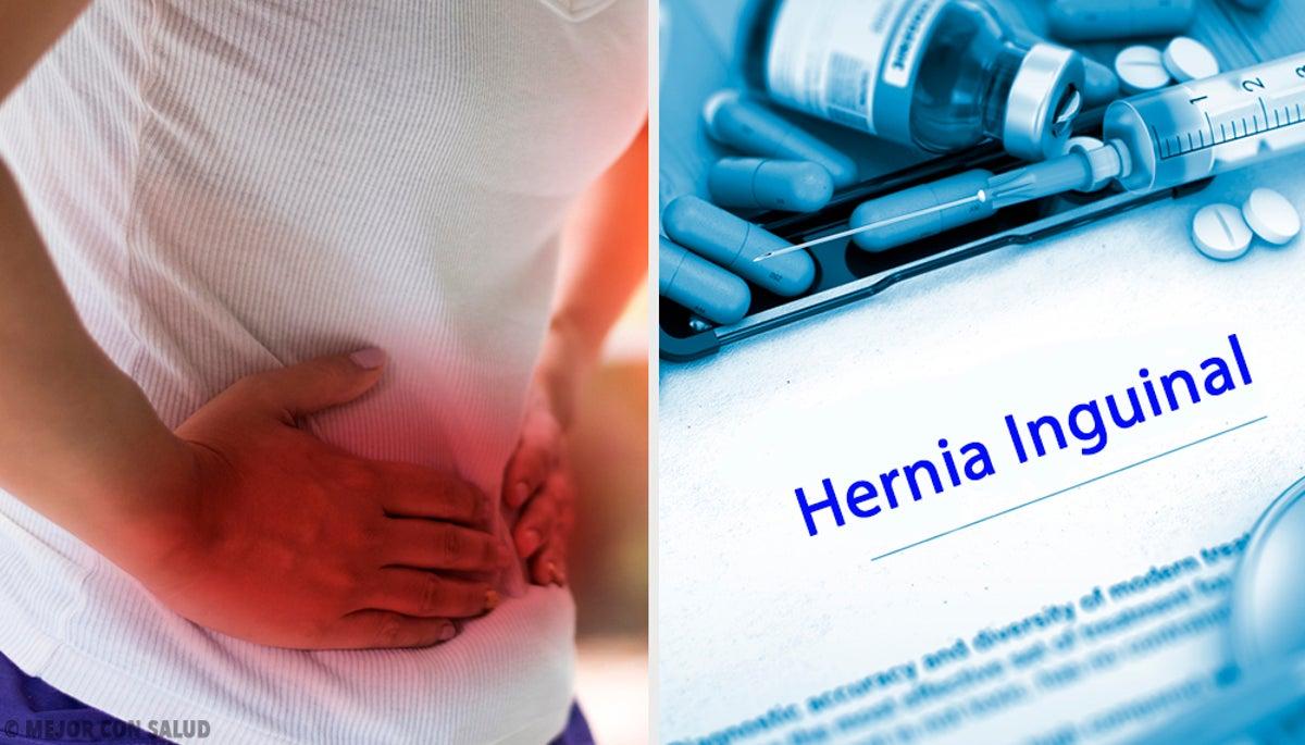 hernia inguinal afecta la prostata