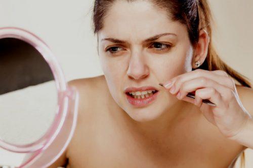 Mujer con un exceso de vello facial