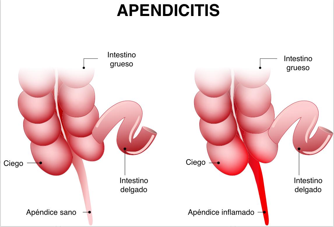 Apendicitis en niños.