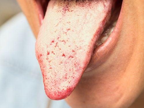 8 remedios naturales para tratar la candidiasis