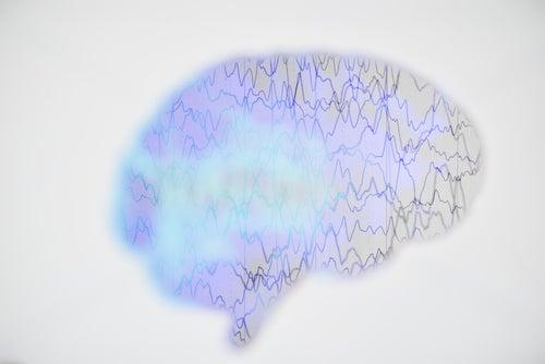 Electroencefalograma de una persona con epilepsia