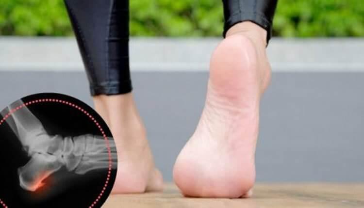 Como curar los espolones calcaneos