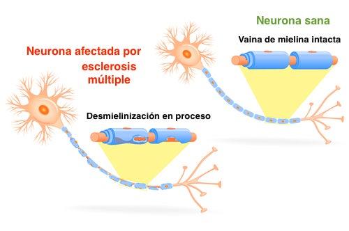 Neurona con esclerosis múltiple y neurona sana