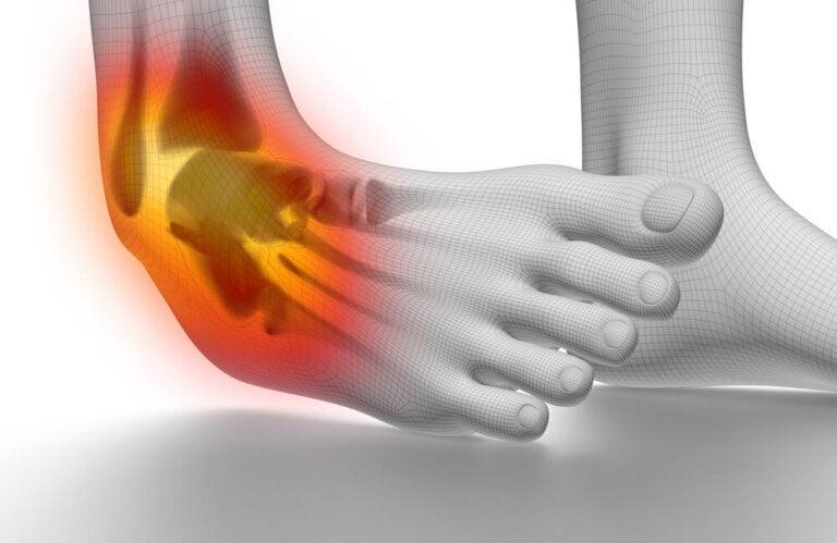 6 tips para prevenir y tratar esguinces de tobillo
