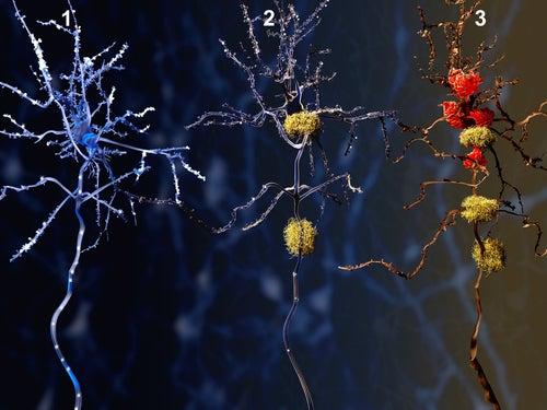 Evolución del Alzheimer en una neurona