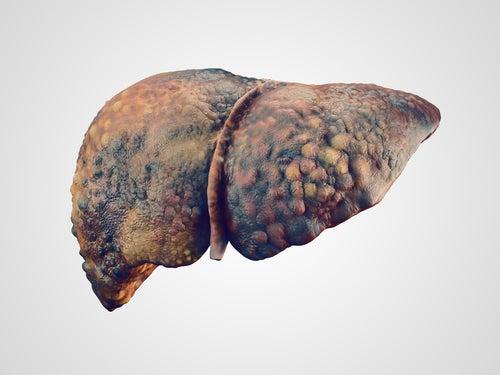 Hígado con hepatitis C crónica que ha derivado en una cirrosis
