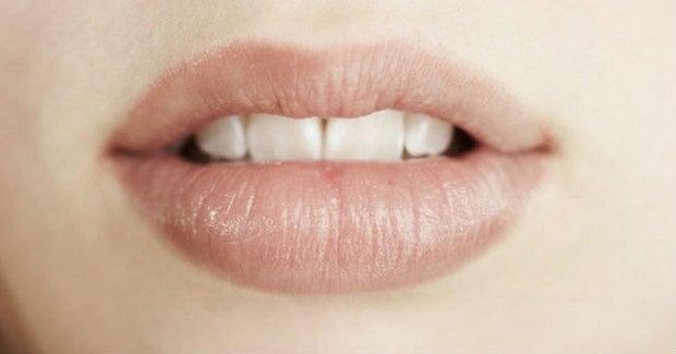 5 tips y remedios para curar los labios quemados