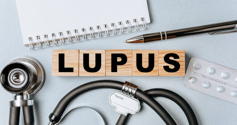 Lupus eritematoso sistémico: todo lo que debes saber