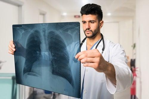El-diagnostico-definitivo-de-la-neumonía-se-hace-con-una-radiografía
