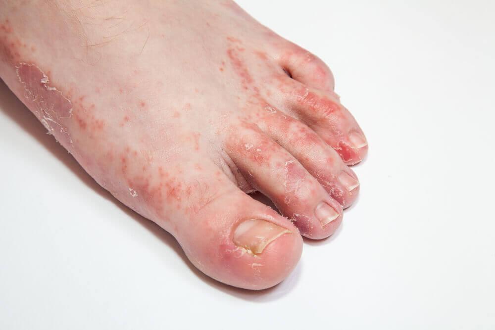 ¿Cuáles son las causas del pie de atleta?