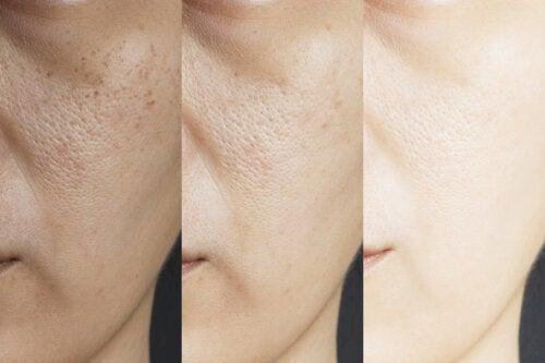 8 remedios caseros para los poros dilatados
