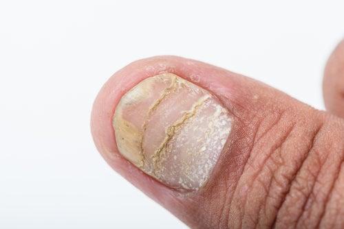 Psoriasis ungueal en las uñas de un hombre