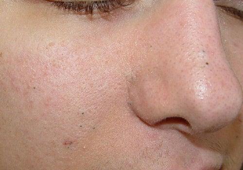 Puntos negros en la nariz y mejillas.