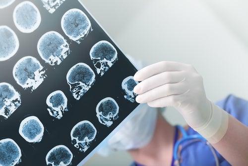 RMN del cerebro para el diagnóstico de la epilepsia