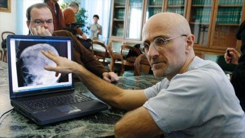 Sergio Canavero, neurocirujano que llevará a cabo el primer trasplante de cabeza