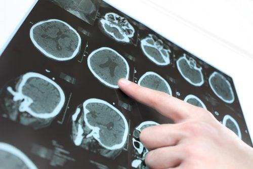 Tomografía para estudiar la ELA.