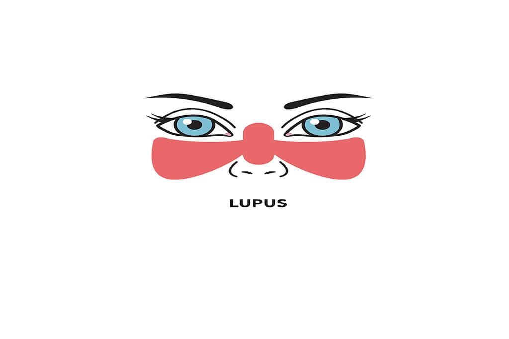 Tratamiento del Lupus Eritematoso Sistémico (LES)