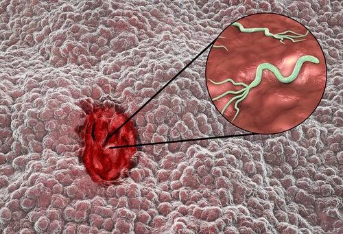 Úlcera gastrica por hellicobacter
