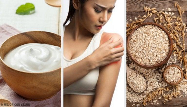 4 remedios para combatir la piel enrojecida por el sol