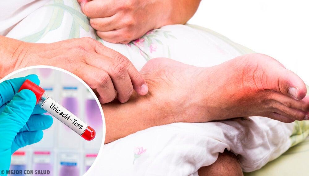 5 causas de un nivel alto de ácido úrico