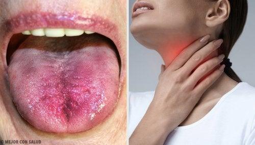 6 formas de saber si hay placa en la garganta