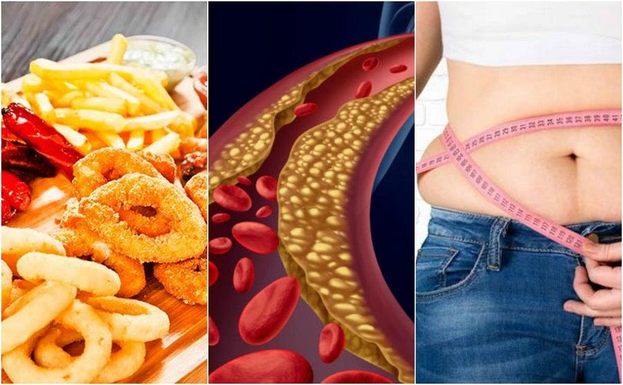6 factores que influyen en el aumento del colesterol