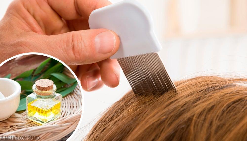 6 productos caseros que ayudan a eliminar los piojos