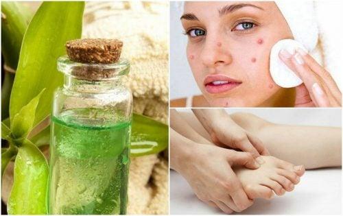 7 aplicaciones medicinales del aceite de árbol de té que te gustará conocer