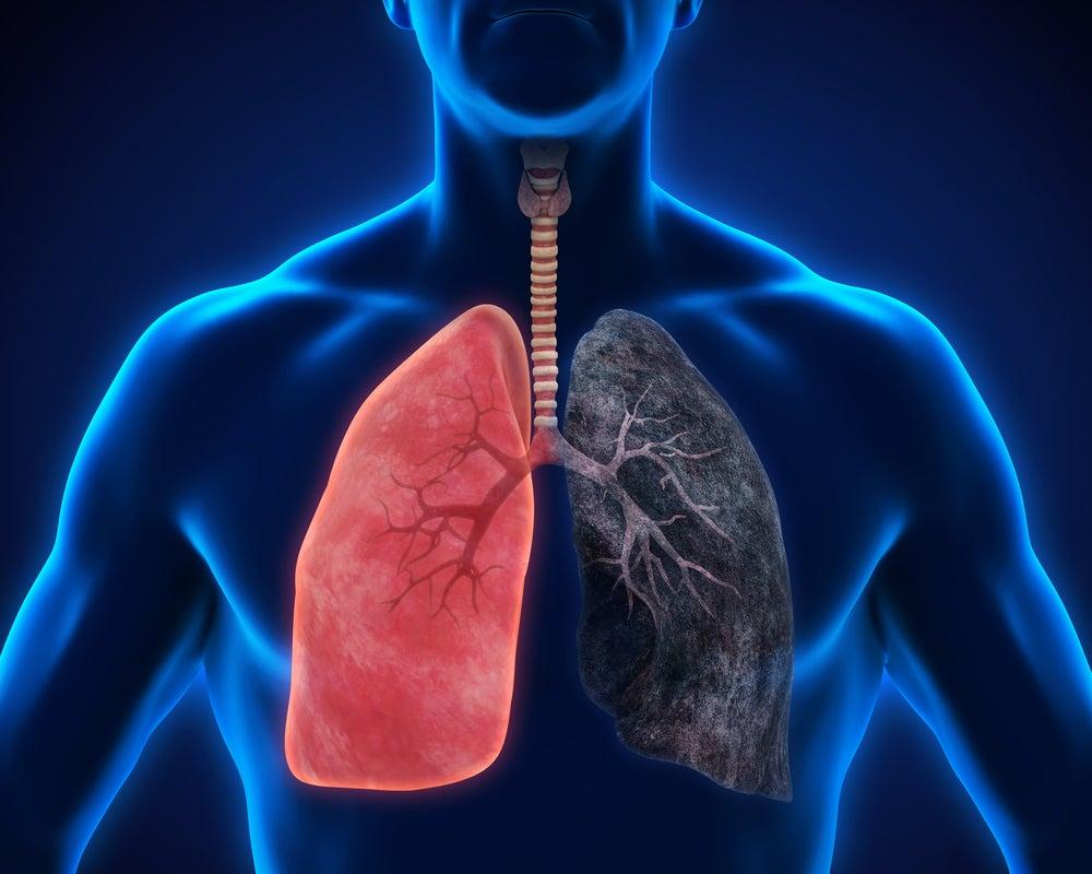 Malos hábitos que deterioran tu salud pulmonar