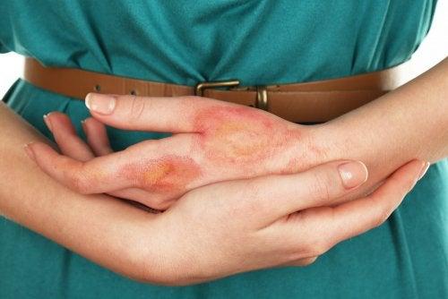 Quemaduras en los dedos: 6 remedios caseros para aliviarlas