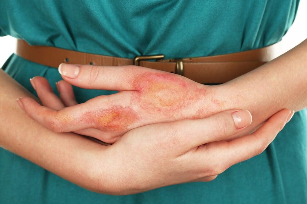 Tipos de quemaduras. Mujer con manos quemadas.