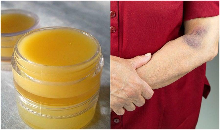 Cómo preparar una crema terapéutica de árnica para curar las contusiones