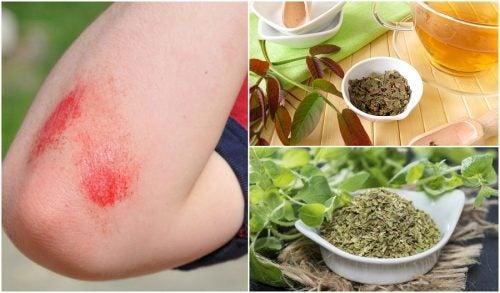 Limpiar heridas superficiales con antisépticos naturales