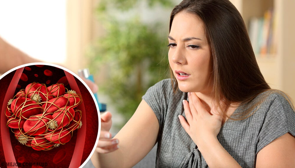 Coágulos en la sangre: 8 señales para estar alerta