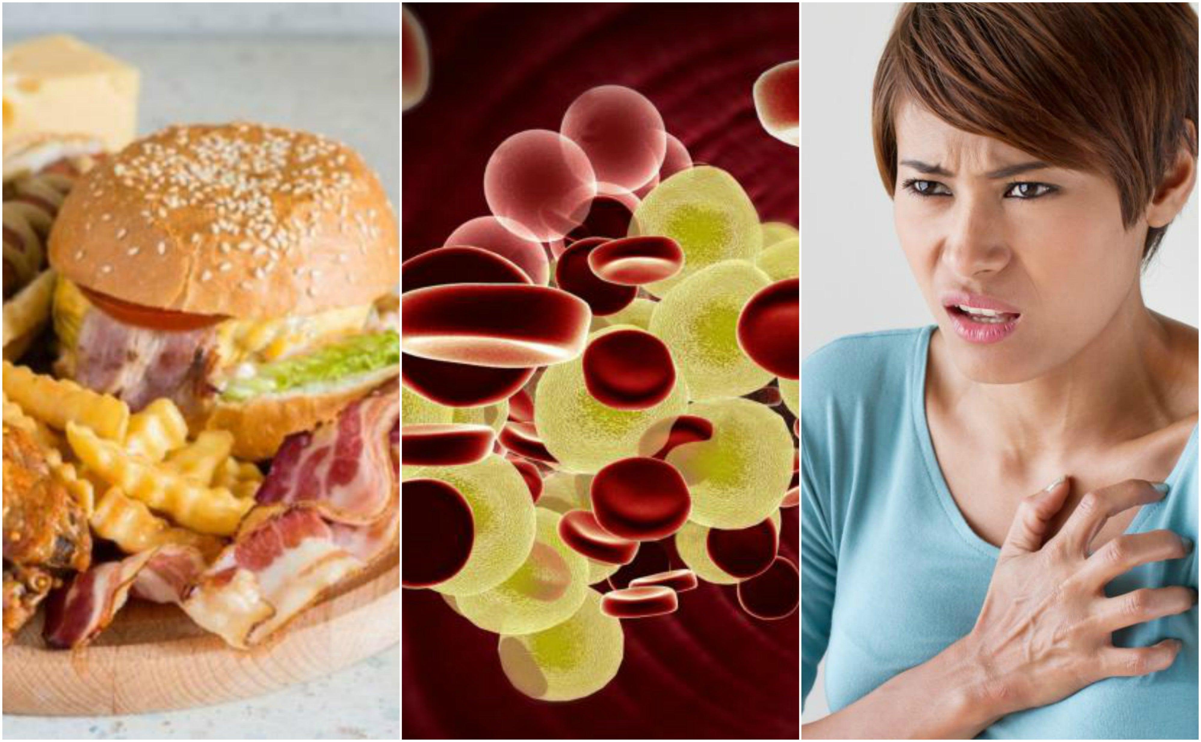 Colesterol alto: por qué es un peligro para la salud y cómo reducir sus niveles