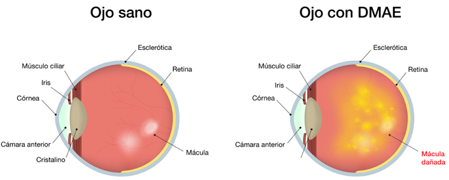 Degeneración macular ojo