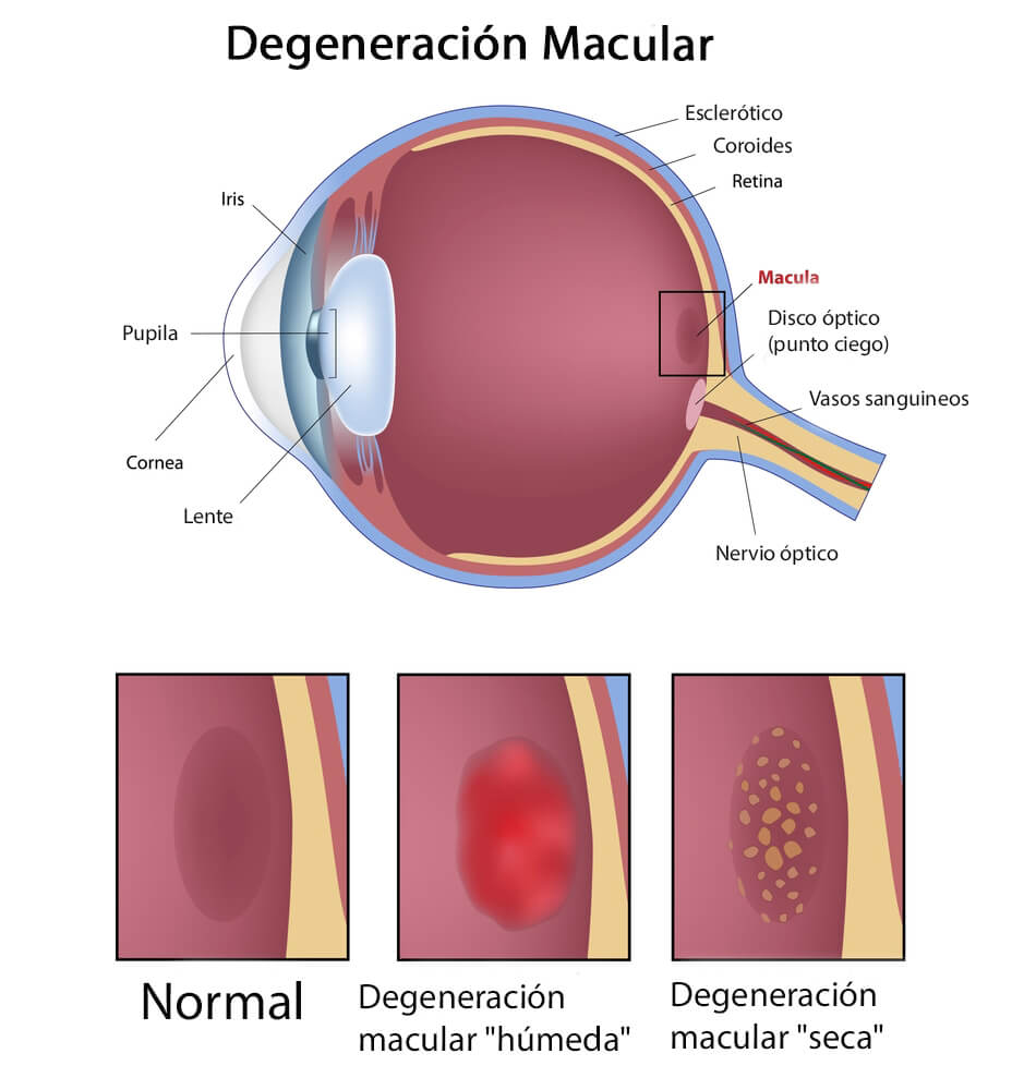 Degeneración macular seca