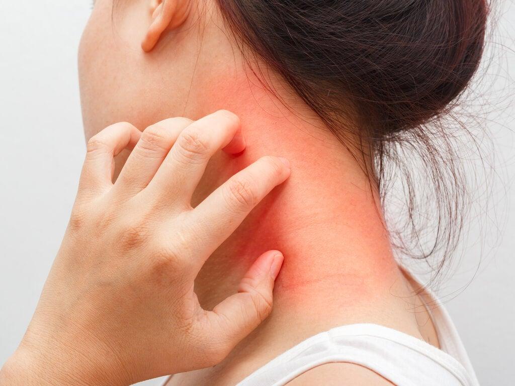 Mujer con dermatitis atópica