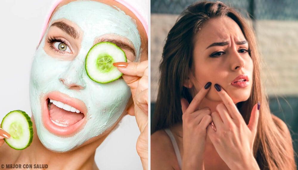 Descubra qual é a melhor máscara facial de acordo com o seu tipo de pele