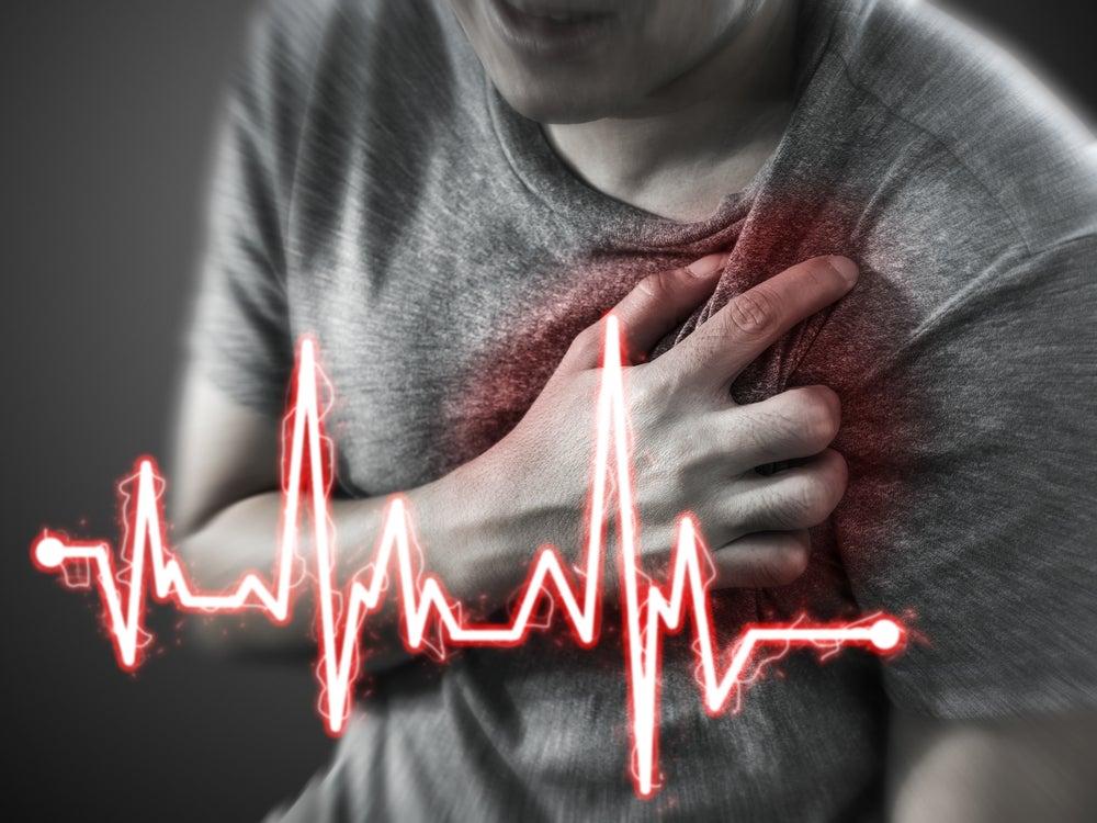 Infarto de miocardio.