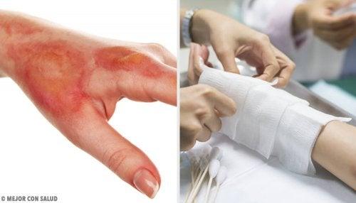 Esto es lo que debes hacer si sufres una quemadura