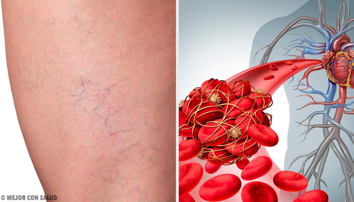 trombosis+venosa+profunda+tratamiento+natural