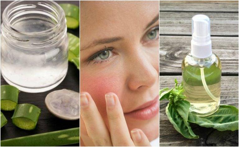 Los 5 mejores remedios caseros para calmar la piel irritada